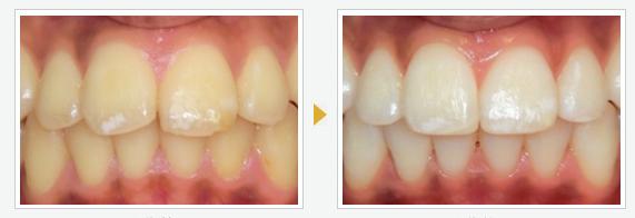 できるだけ安く、歯を白くするには?ホワイトニング比較しますわよ♪